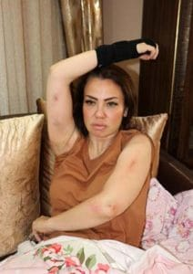Sevilen Şarkıcı Lara Kaza Geçirmişti… Olay Sonrası İlk Açıklama!